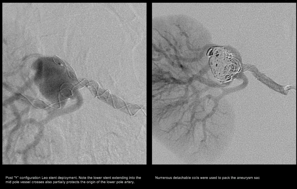 Renal aneurysm - stent assisted coiling (stents protect the normal artery branches)