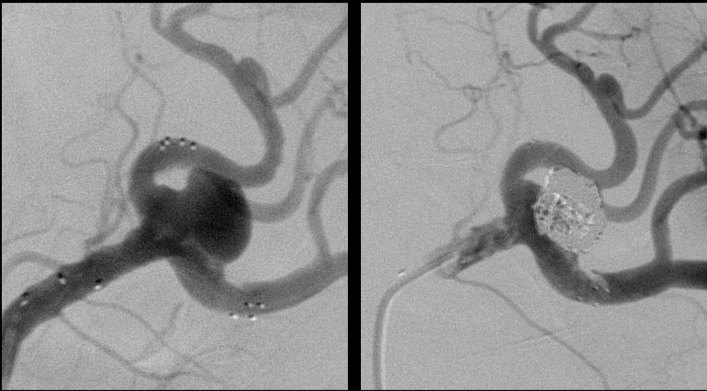 Splenic aneurysm - stent protected coiling to secure